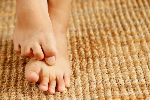 무는 발로 인한 곰팡이 발 가려움증