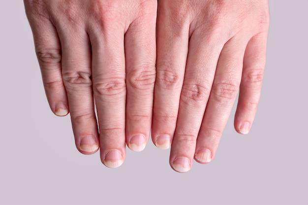 손상된 손톱에 곰팡이 손톱 감염이 닫힙니다.