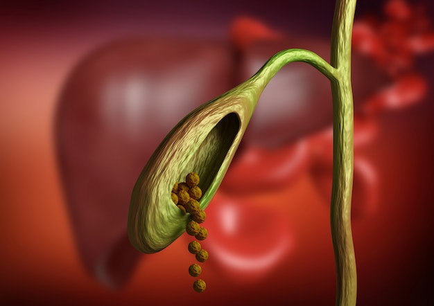 Gallbladder cutting showing gallstones obstructing bile duct on organic background. 3d rendering