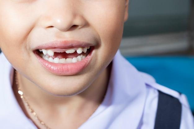 Girl broken lost milk tooth