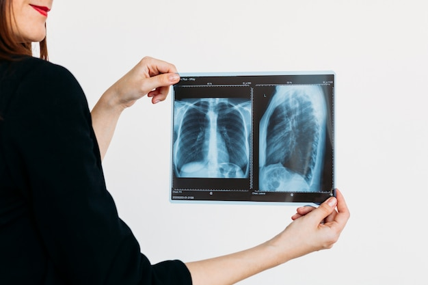 画像の肺、x線、医師、病気、健康、適切な栄養、体を保持している女の子