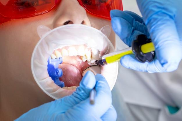 Девушка на осмотре у стоматолога. лечение кариозного зуба