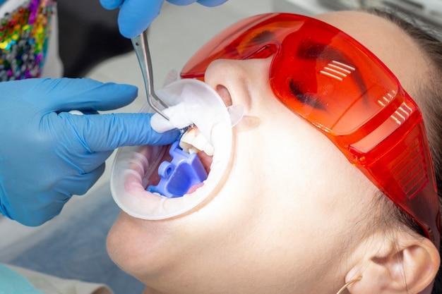 歯科医の患者。女の子は口を開いて歯科用椅子に横になります。
