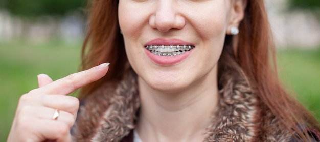 The girl points her finger at the even and white teeth with braces. straightening your teeth with braces. dental care. smooth teeth and a beautiful smile