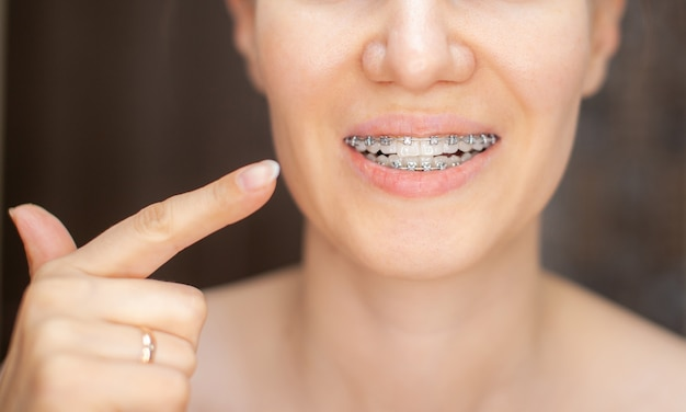 The girl points her finger at the even and white teeth with braces