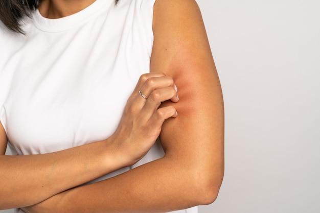 Девушка царапает зуд на руке, страдает от сухой кожи или зуда, аллергия на животных, укусы насекомых studio