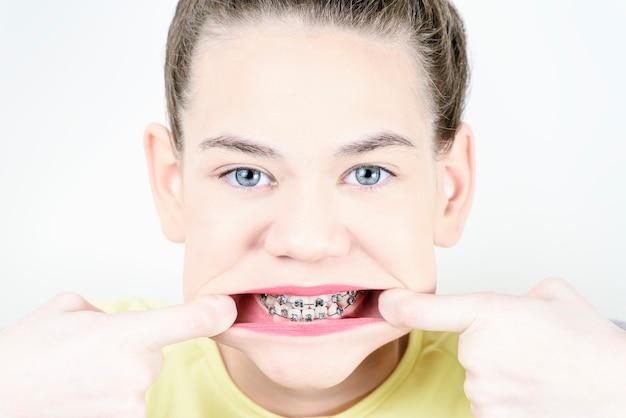 소녀는 손가락으로 입을 스트레칭하는 치과 교정기를 보여줍니다.
