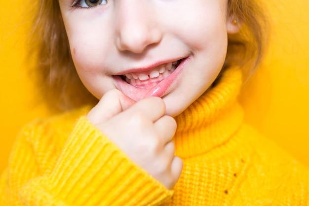 Девушка показывает зубы - патологический прикус, неправильный прикус, неправильный прикус. детская стоматология и пародонтология, исправление прикуса. здоровье и уход за зубами, лечение кариеса, молочные зубы. верхняя челюсть упирается в десну.