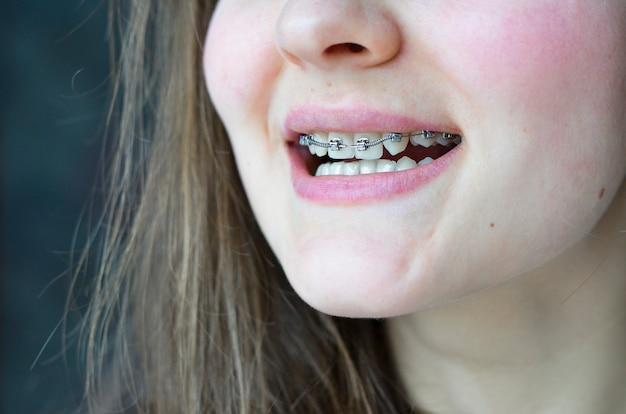 Girl smiling with brackets