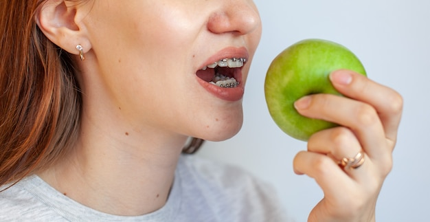 A girl with braces on her teeth wants to bite a green apple. close-up photos of teeth and lips. smooth teeth from braces. photo on a light solid background.