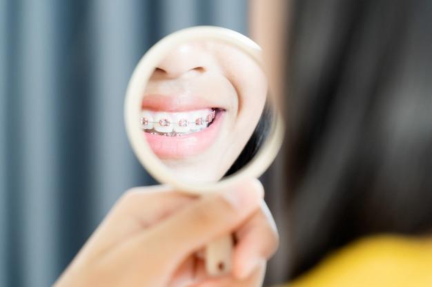 Девушка с брекетами зубов улыбается и счастлива