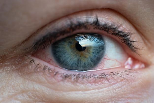 Девушка с раздраженным сухим красным глазом или аллергией. женщина страдает покраснением.
