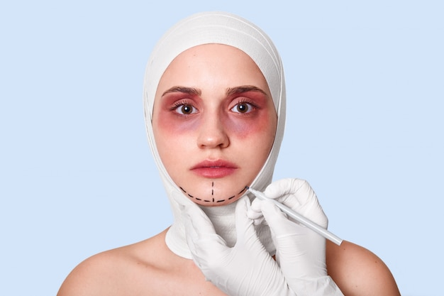 Girl wrapped with bandages and has bruises around eyes preparing for operation