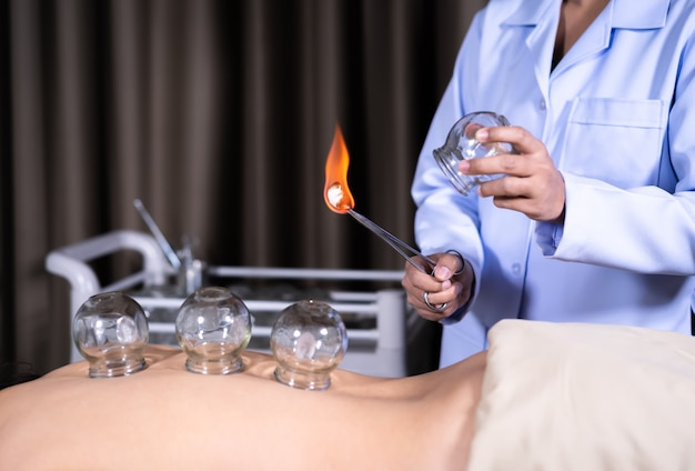 Glass cup with fire for cupping treatment on female back