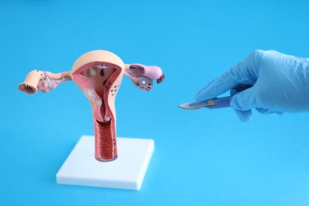 医師の手袋をはめた手は、メスを女性の生殖器系の手術に伸ばして、
