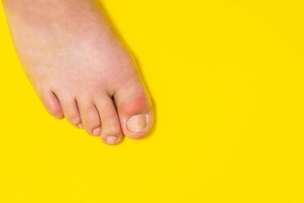 足の親指の痛風が赤みと耐え難い痛みとして現れる