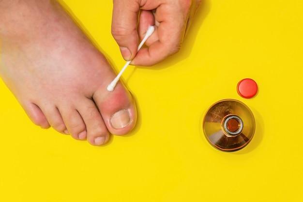 治療用軟膏による足の親指の治療の痛風、上面図