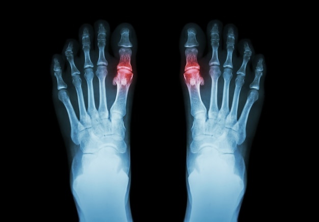 Gout , rheumatoid arthritis . film x-ray both foot and arthritis