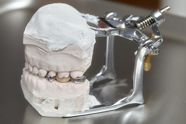 Gray dental prosthesis teeth mold, clay human gums model