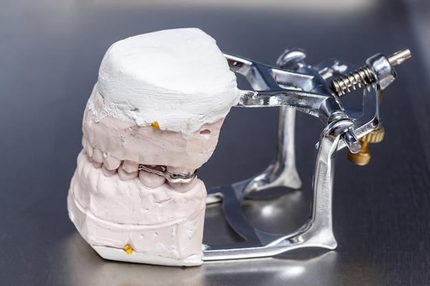 Gray dental prosthesis teeth mold