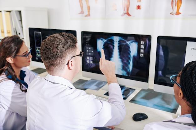 적절한 진단을 내리려고 할 때 컴퓨터 화면에서 흉부 x- 레이를 논의하는 의사 그룹