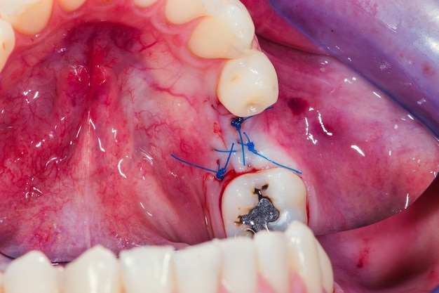 The gum is sutured with a special floss at the surgical incision to accommodate the dental implant