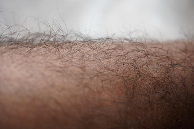 Hair on a man's lag