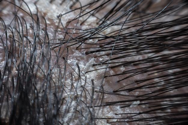 건선의 비듬과 비늘이있는 머리카락 두피