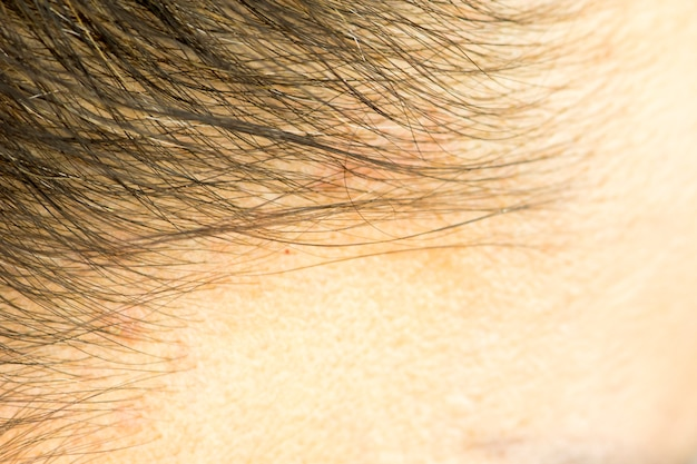 The hairline and on the scalp close up, dermatological diseases, skin problems