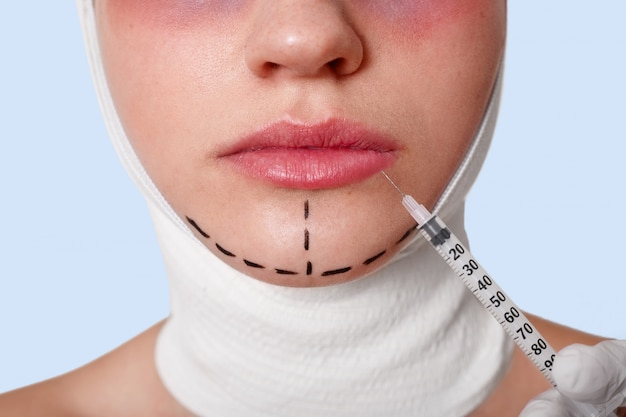 Half of face of beautiful young caucasian woman with perforation lines on chin before plastic surgery operation