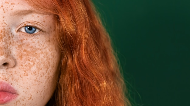 Half-face portrait of a red-haired girl with lots of freckles on the skin and blue eyes on green