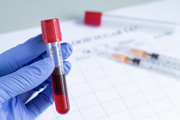 Hand of doctor holding test tube with red blood plasma ready for testing