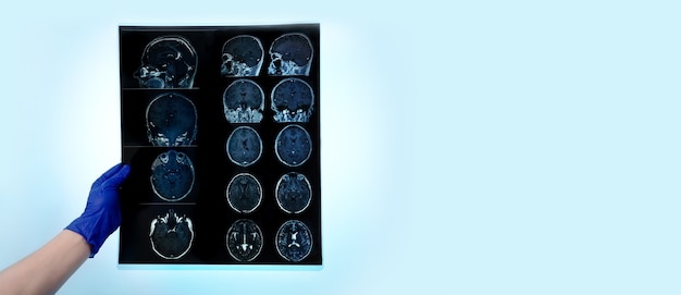 Hand in glove holds mri brain scan or magnetic resonance image results, neurology concept, snapshot over blue background, panoramic layout