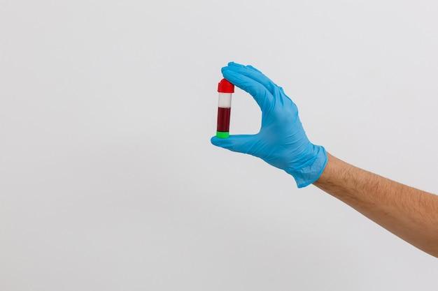시험관에 피를 들고 있는 손 클로즈업