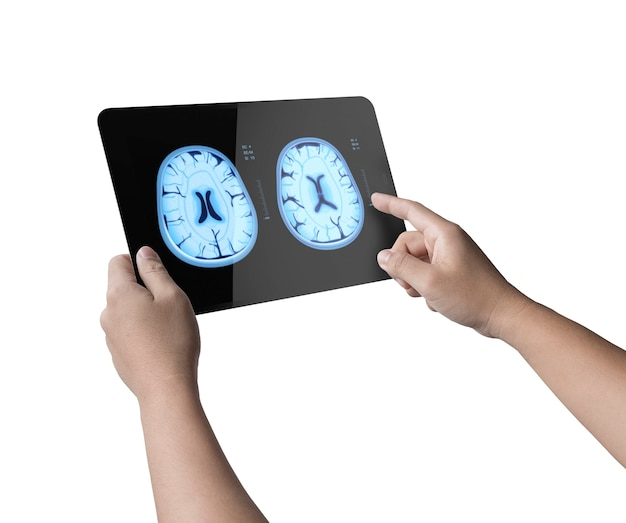 Hand holding digital tablet display xray brain isolated on white