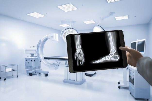 Рука держит рентгеновскую пленку с 3d-рендерингом мрт-сканером или устройством для сканирования магнитно-резонансной томографии