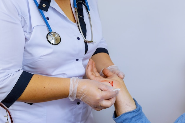 Hand injured of fresh wound with blood patient visiting doctor traumatologist
