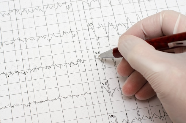 Hand in medical glove holding a ballpoint pen. electrocardiogram