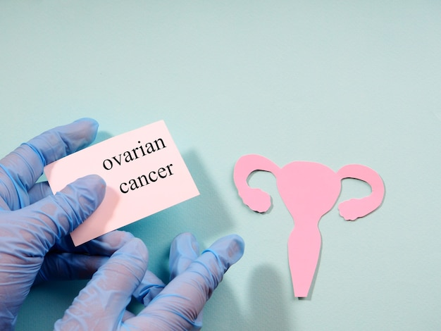 A hand in a medical glove holds a sign with the inscription ovarian cancer on the background of the silhouette of the ovarian