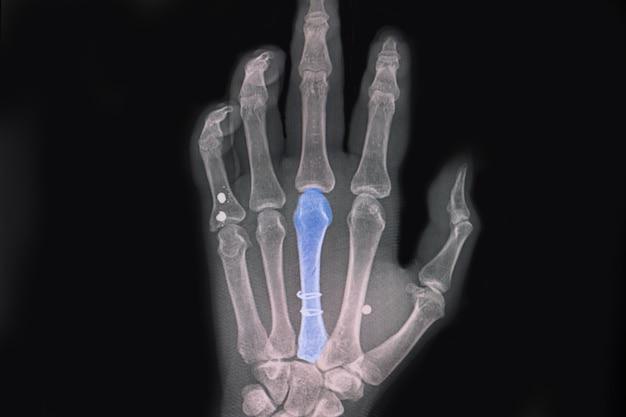 원형 와이어로 나선형 골절된 세 번째 중수골 뼈 후 고정을 보여주는 손 엑스레이