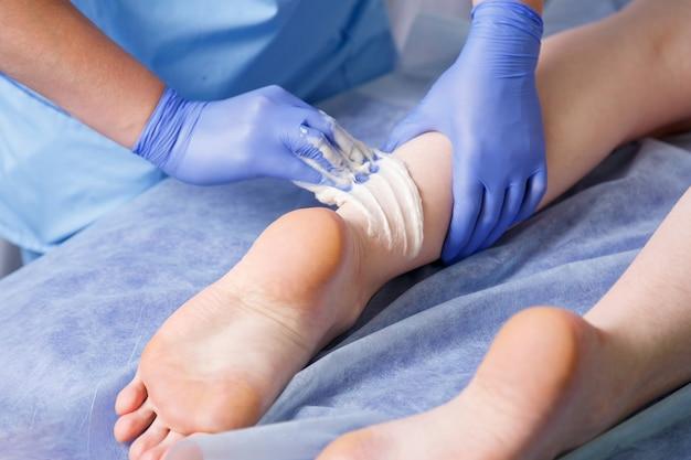 젊은 여성에게 왼발 발 뒤꿈치 옆에 손 의사 화장품 얼룩 설탕 페이스트