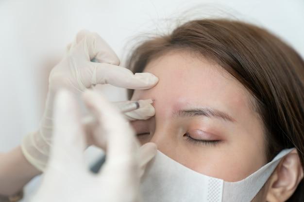 여성의 이마에 보툴리눔을 주입하는 미용사의 손. 여자는 그녀의 눈을 감고 얼굴 마스크를 쓰고.