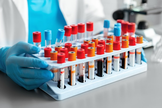 Руки лаборанта, держащего поднос с образцами крови, крупным планом