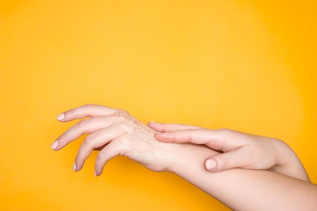 건조한 갈라진 피부를 가진 손, 손 피부 문제의 개념. 노란색 배경