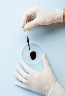 Hands with gloves and sample of blood