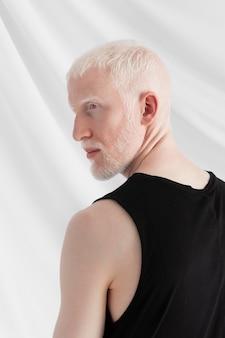 Handsome albino man posing