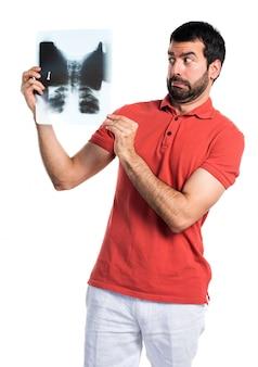 Handsome man holding a bone scan