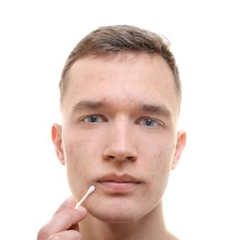 問題のある肌と白い背景の上の綿棒を持つハンサムな若い男