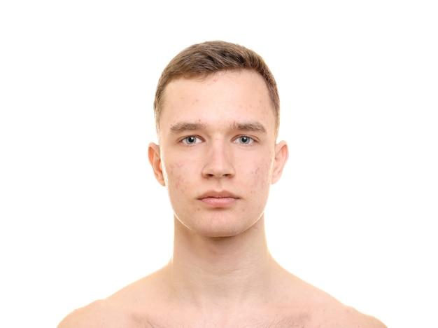 白い背景の上の問題肌を持つハンサムな若い男