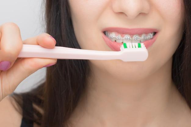Счастливая женщина чистит зубы зубными скобками розовой щеткой. брекеты на зубы после отбеливания. самолигирующие брекеты с металлическими завязками и серыми резинками или резинками для идеальной улыбки